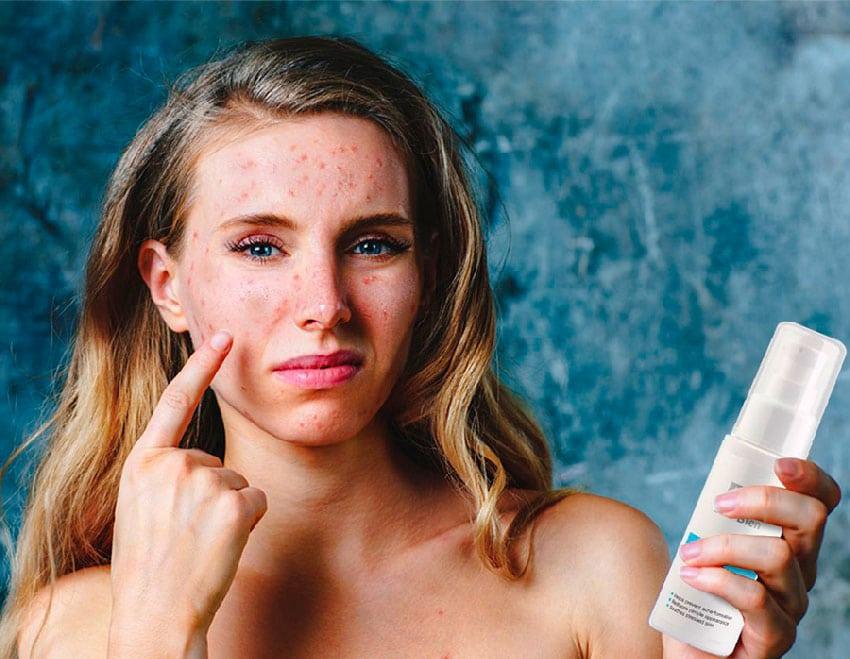 Возврат косметики при аллергии